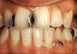 Journée Mondiale de la santé bucco-dentaire
